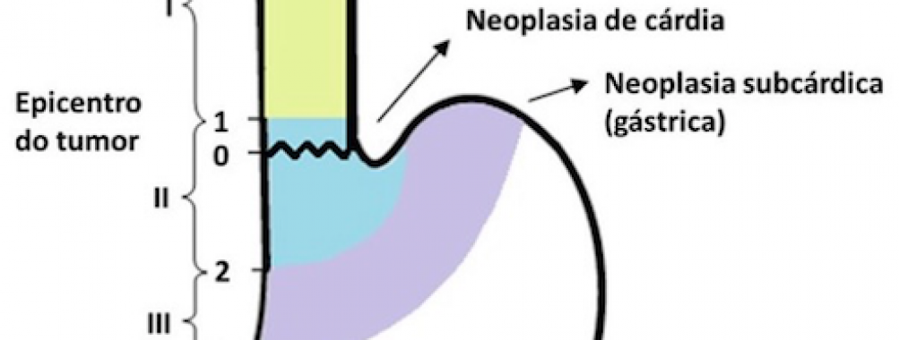 Siewert – lesões neoplásicas da junção esofagogástrica