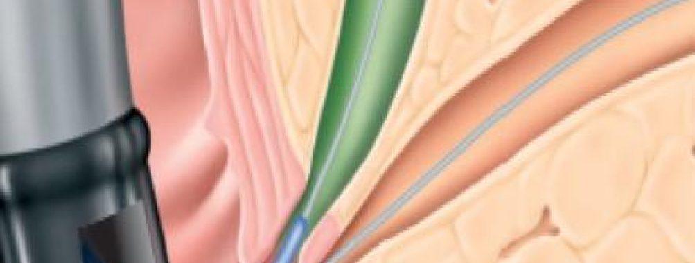 CPRE: usar fio-guia curto ou longo?