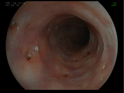 Quiz – Qual o diagnóstico destes achados esofágicos?