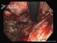 Quiz – Mieloma múltiplo e lesões gástricas