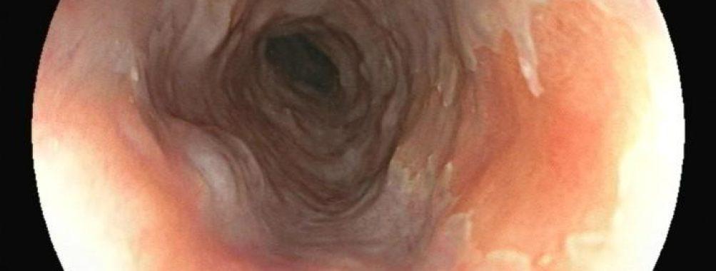 Mucosa gástrica ectópica em esôfago proximal
