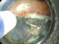 Dissecção endoscópica da submucosa de câncer gástrico precoce