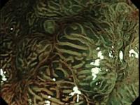 Classificação de Kudo – Pit pattern