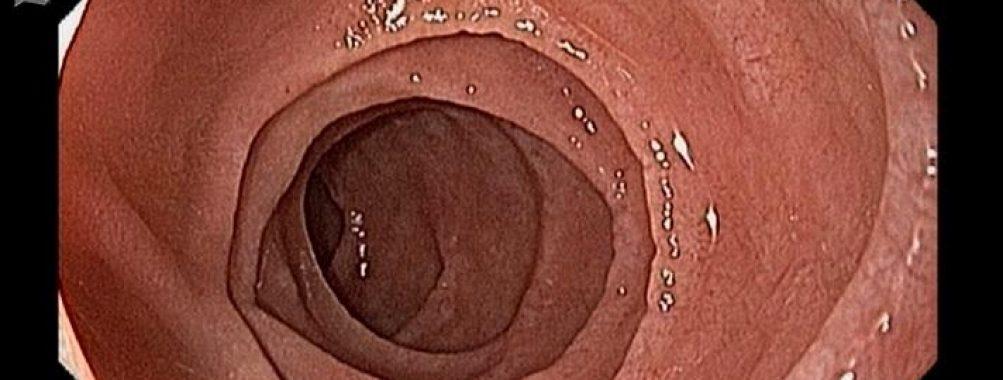 QUIZ ! – Sobre os achados duodenais em Doença Celíaca :