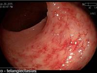 Coloproctopatia actínica – Classificação endoscópica e clínica de Brian P. Saunders