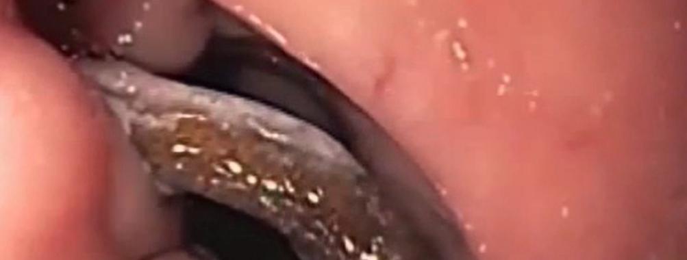 Opções endoscópicas no tratamento das complicações do anel de restrição em pacientes pós by-pass gástrico.  Série Endoscopia Bariátrica