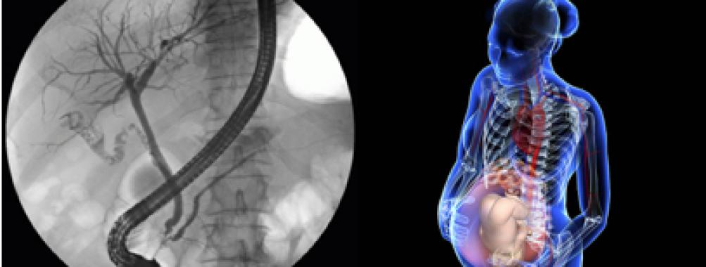 CPRE em mulheres grávidas é seguro ?