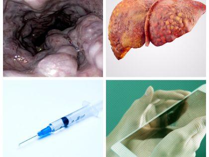 Qual a melhor opção para sedação para procedimentos endoscópicos em pacientes com cirrose hepática?