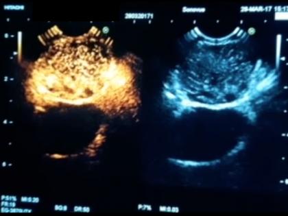 Utilização de Agentes de Contraste Ultrassonográficos (microbolhas) no diagnóstico diferencial de lesões pancreáticas avaliadas por ecoendoscopia