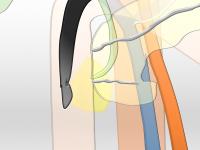 Pâncreas Divisum – Diagnóstico e Terapêutica