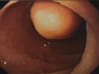 Tumores neuroendócrinos duodenais