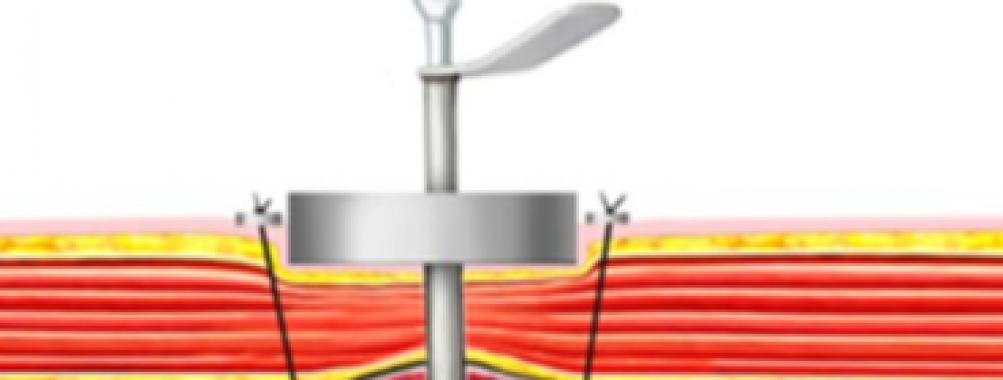 Gastrostomia percutânea com auxílio de magnetos, sem endoscopia ou métodos de imagem: estudo animal