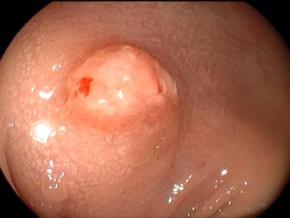 QUIZ! – chicken skin ou white spots adjacente a um pólipo