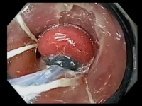 Mucosectomia de esôfago de Barrett com ligaduras elásticas
