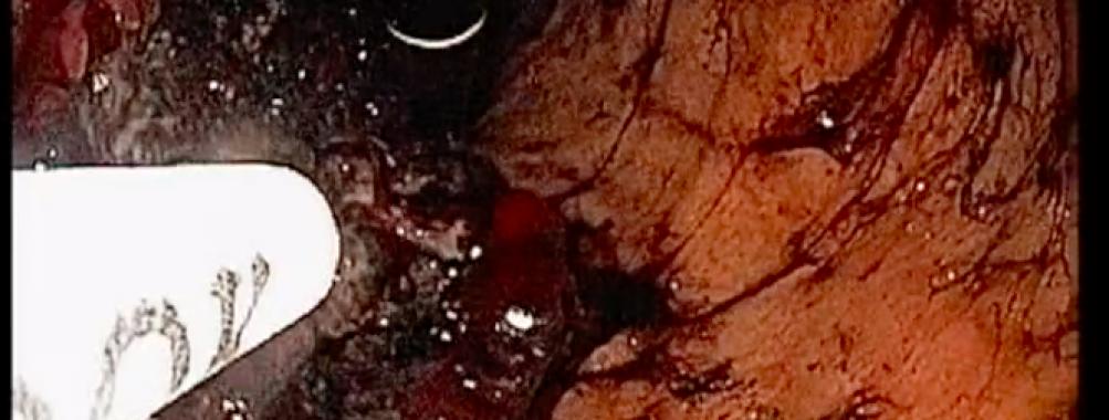 Hemospray em sangramento de tumor gástrico