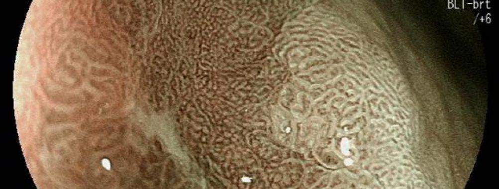 Câncer gástrico precoce – Diagnóstico com cromoscopia e magnificação