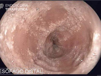 Diagnóstico e tratamento endoscópico da esofagite eosinofílica e suas complicações