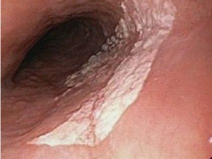 Quiz – Lesão plana de esôfago médio.