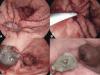 Eficácia do Amplatzer (cardiac septal occluder) no tratamento de fístula e deiscência após cirurgia bariátrica