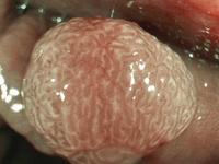Classificação Endoscópica de cromoscopia com NBI (Narrow Band Image) e magnificação para tumores colorretais proposta pela  Japan NBI Expert Team (JNET)