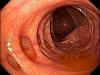 Preparo de Cólon para Colonoscopia: Atualização 2019 ESGE (European Society of Gastrointestinal Endoscopy)