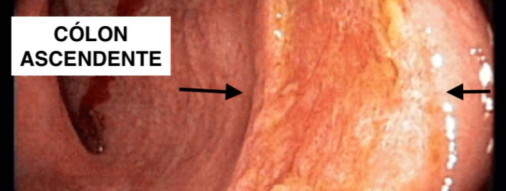 Assuntos Gerais – Tuberculose Intestinal