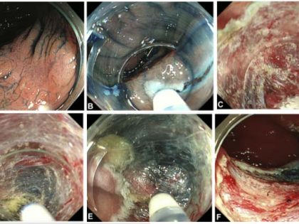 Saline-pocket endoscopic submucosal dissection para neoplasias colorretais superficiais. Trial randommizado controlado.