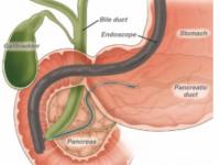 O que podemos fazer para evitar pancreatite pós-CPRE ? Essas duas publicações recentes tratam desse assunto.