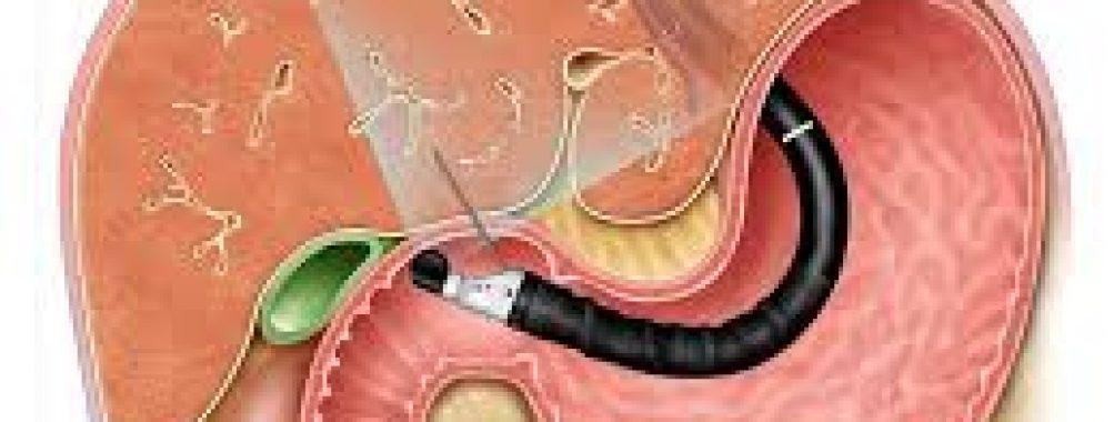 Qual agulha é melhor para punção ecoguiada do fígado ? FNA ou FNB ? Leia o ARTIGO COMENTADO !