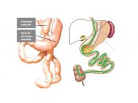 Anatomia endoscópica pós cirurgia bariátrica
