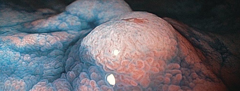Caso clínico: Importância do exame cuidadoso da câmara gástrica!