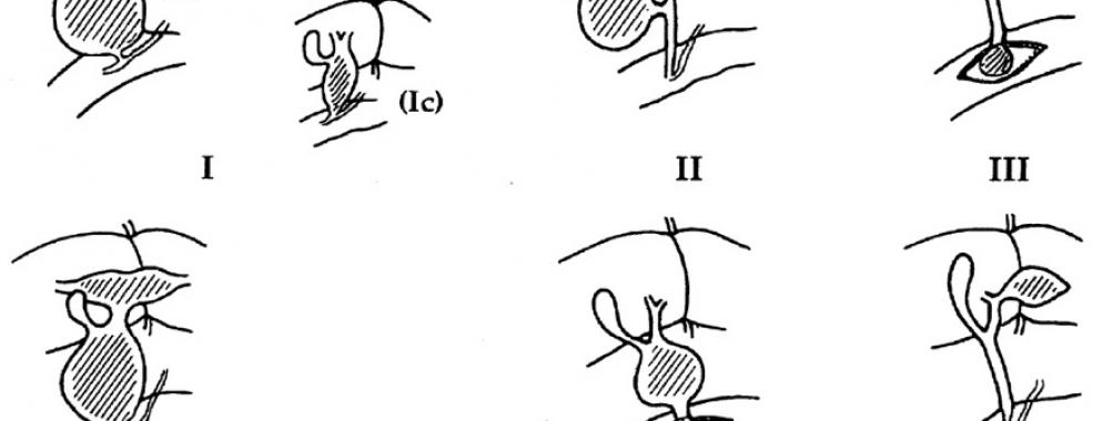 Classificação de Todani – Doença cística da via biliar