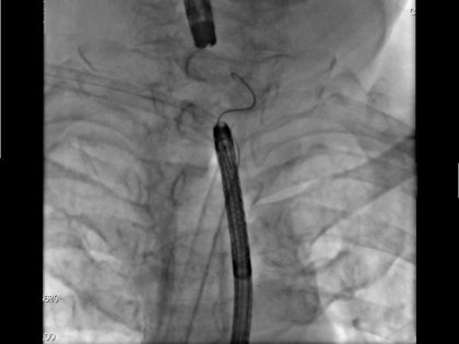 Recanalização endoscópica após obstrução completa do esôfago proximal
