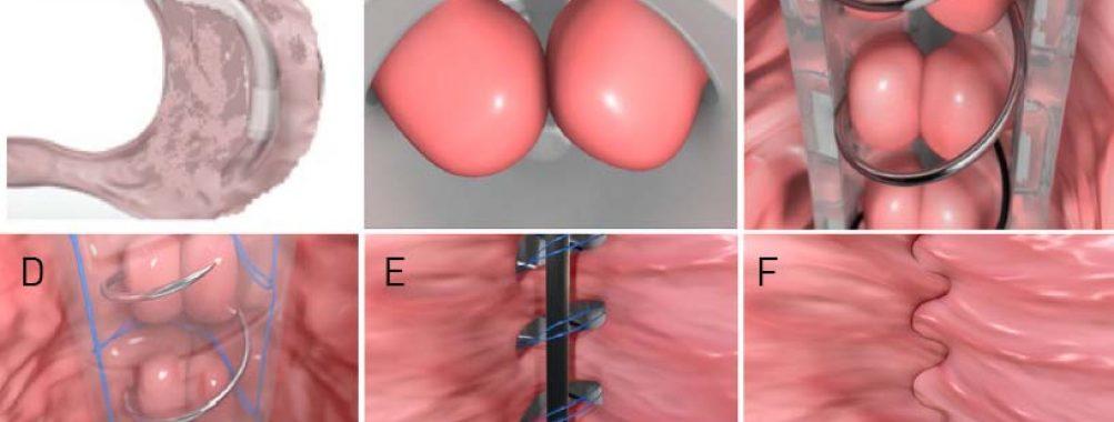 Segurança e eficácia de um novo método de sutura endoscópica (Endozip) para tratamento de obesidade