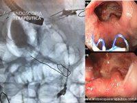 Quiz! Endoscopia nas Complicações da Cirurgia Bariátrica