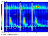 Devemos incluir a manometria esofágica de alta resolução na avaliação do paciente com doença do refluxo gastroesofágico?