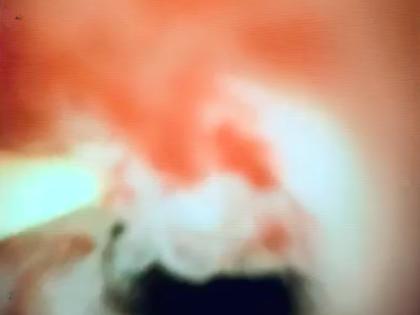 Papel da Colangioscopia na avaliação das Estenoses Biliares Indeterminadas
