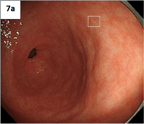Metaplasia intestinal – figura 7a