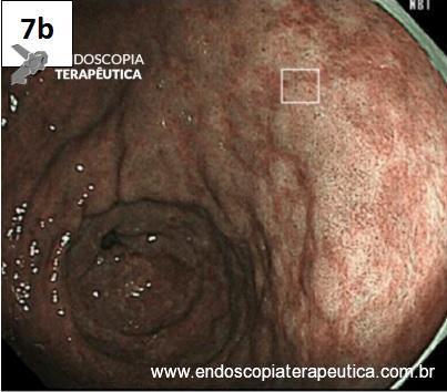 Metaplasia intestinal – figura 7b