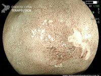 Algoritmo diagnóstico simples para detecção de câncer gástrico precoce através da magnificação endoscópica (MESDA-G)