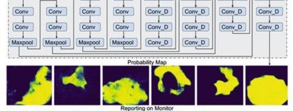 Inteligência Artificial na Endoscopia