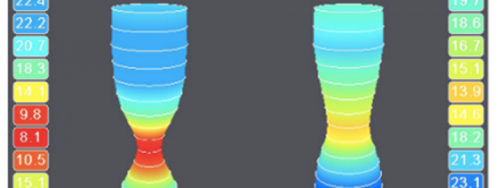 Endoluminal Functional Lumen Imaging Probe (EndoflipTM): conhecendo a tecnologia e seus potenciais usos