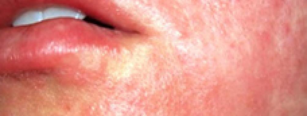 QUIZ! – Reações alérgicas