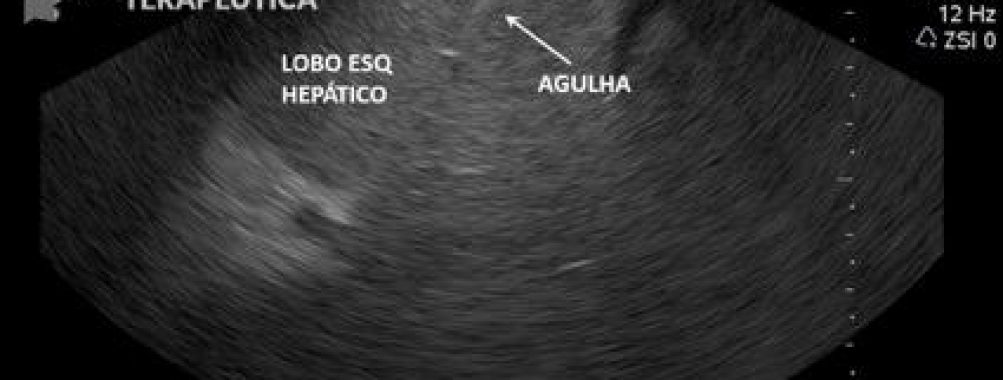 Caso clínico – Biópsia hepática por ecoendoscopia