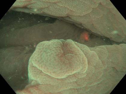 Quiz! Erosão vs. neoplasia em cólon?