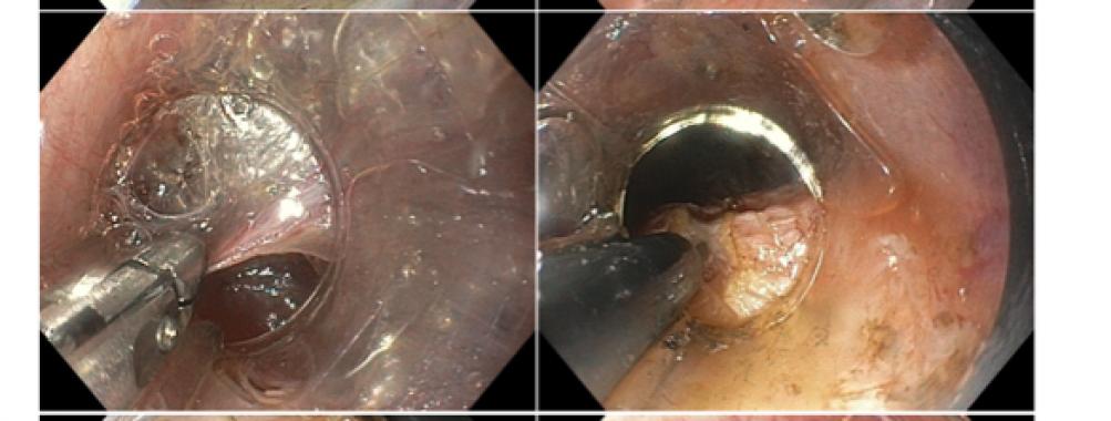 Endoscopia no terceiro espaço