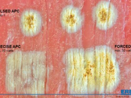 Usos do Plasma de Argônio em endoscopia