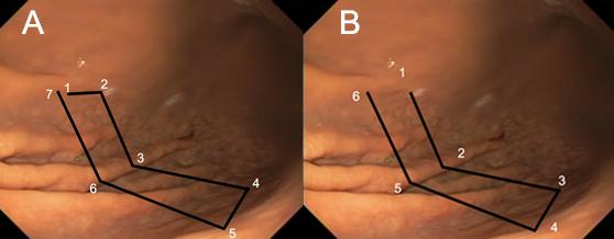 Gastroplastia Endoscópica (ESG - Endoscopic Sleeve Gastroplasty)