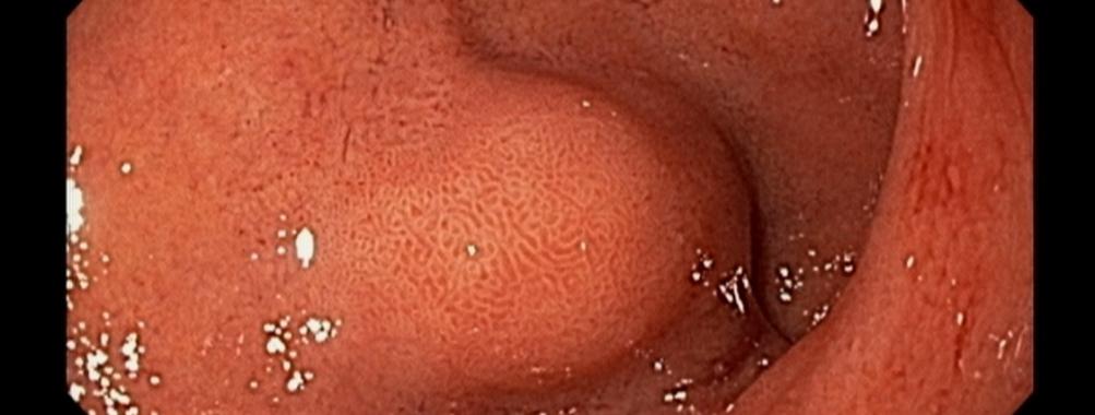 Quiz: Lesão bulbar – Qual sua hipótese?