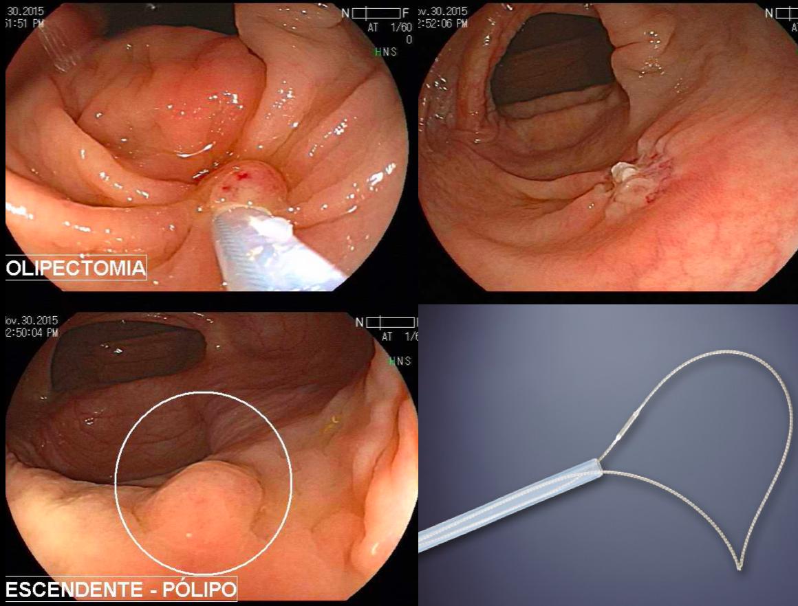 Pólipos colorretais menores que 20 mm: guia de sobrevivência para o endoscopista